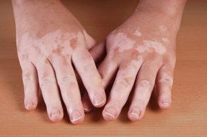 Vitíligo, despigmentación, Dermomedic