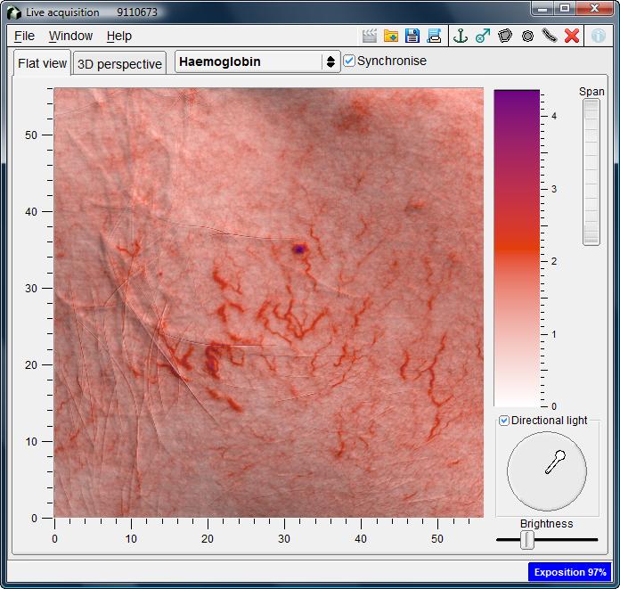 20130424134948-clinica-de-dermatologia-en-madrid---alergias-al-sol-antera-3d.jpg-web