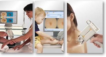 dermatoscopia - clínica dermatológica madrid