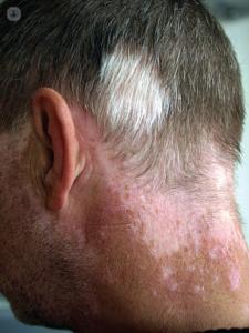 falta de pigmentación - cuello con vitíligo