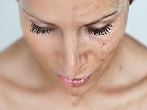 fotorejuvenecimiento facial - clínica dermatológica madrid