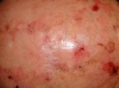 queratosis actínica - clínica dermatológica madrid