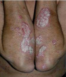 tratamientos psoriasis - clínica dermatológica madrid