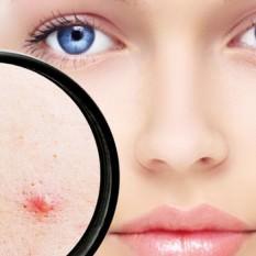 tratamientos_acne