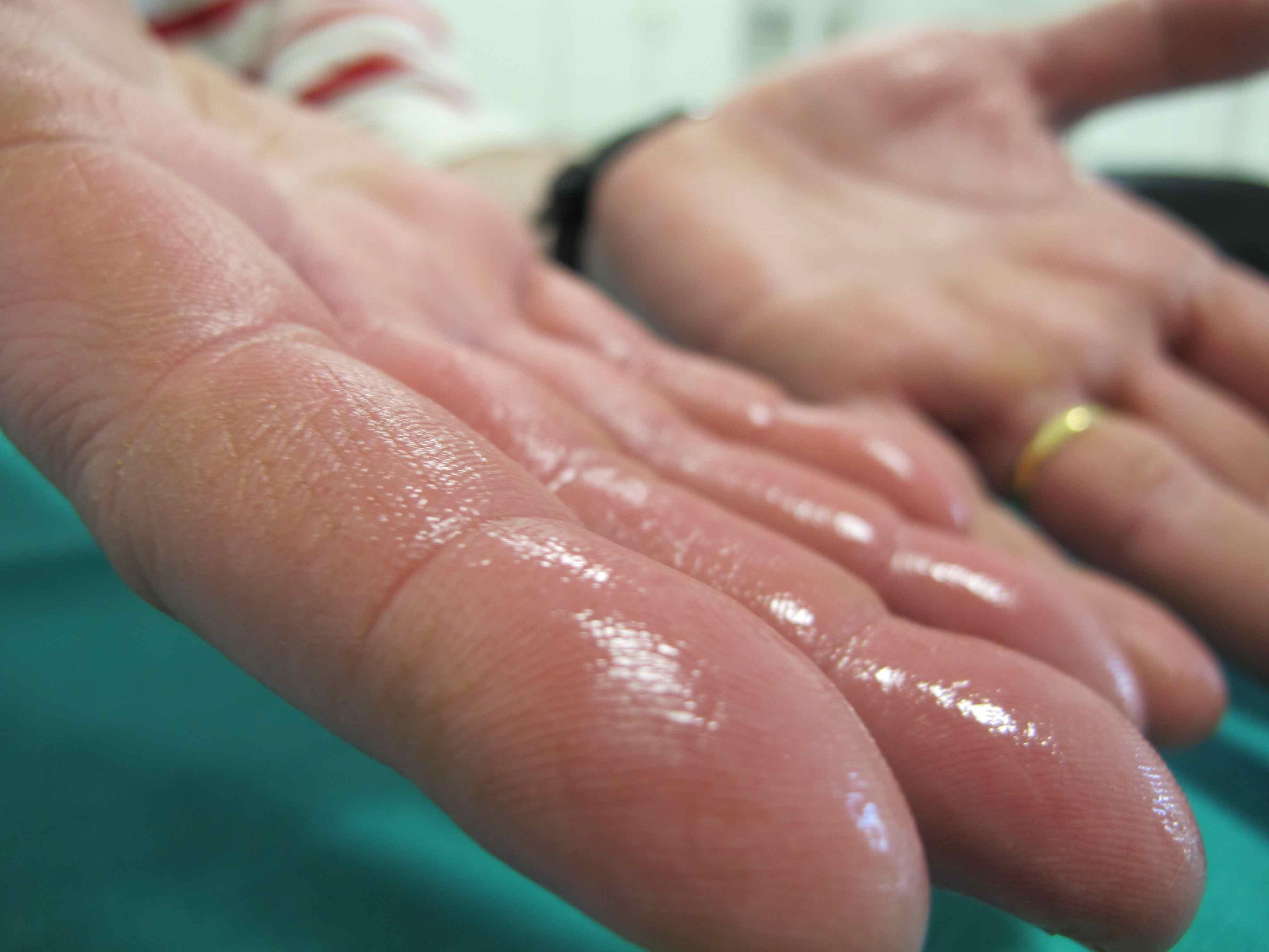 ¿Te sudan mucho las manos? Puedes padecer hiperhidrosis