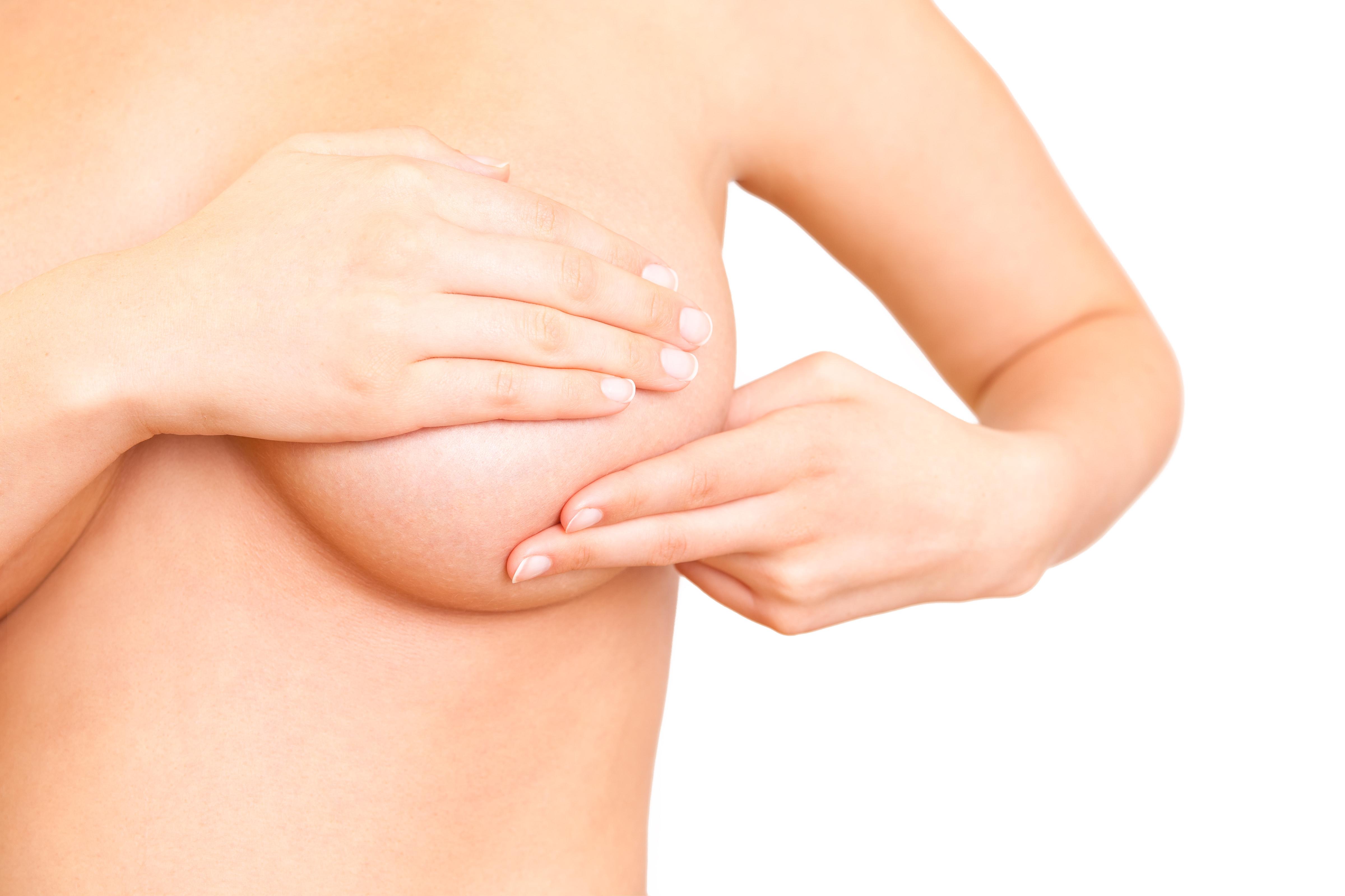 cáncer de mama - clínica dermatológica madrid