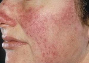 tratamiento rosacea - clínica dermatológica madrid