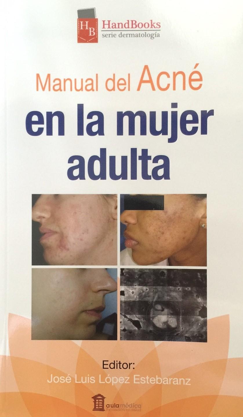 acné mujer adulta - clínica dermatológica en madrid