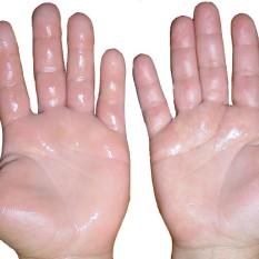 hiperhidrosis palmar - clínica dermatológica madrid