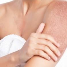 psoriasis en placas - clínica dermatológica madrid