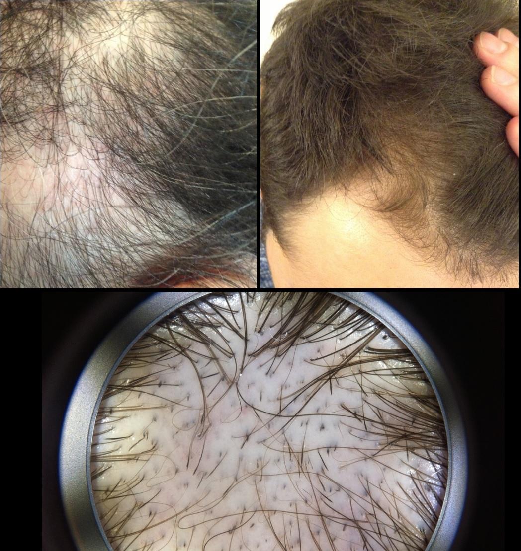 tratamiento alopecia - clínica dermatológica madrid