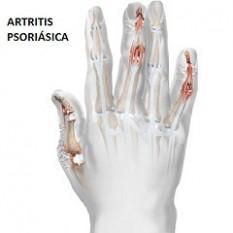 artritis psoriásica - clínica dermatológica madrid