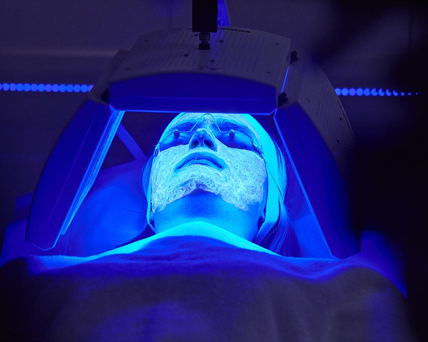 Tratamiento de acné