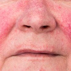 Eritema facial