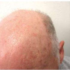 eliminación manchas solares - clínica dermatológica madrid
