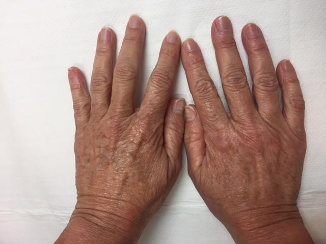 manchas solares en manos - clínica dermatológica madrid
