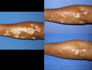 comparación vitíligo - clínica dermatológica madrid