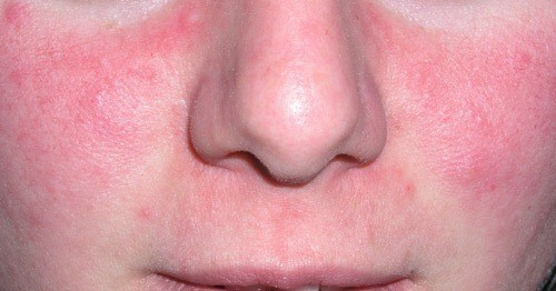 https://blogmedicina.com/wp-content/uploads/2011/12/Lapielrosacea.jpg