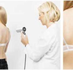 diagnostico cancer de piel