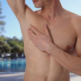 Depilación para hombres, Dermomedic