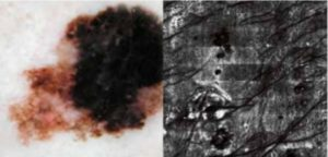 melanoma ampliado