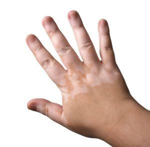 tratamiento vitiligo en madrid