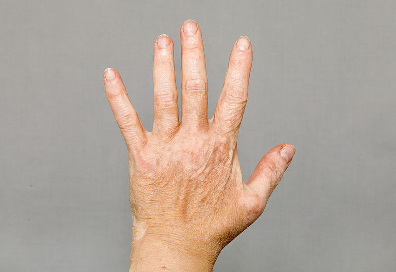 tratamiento vitiligo clinica dermatologica madrid