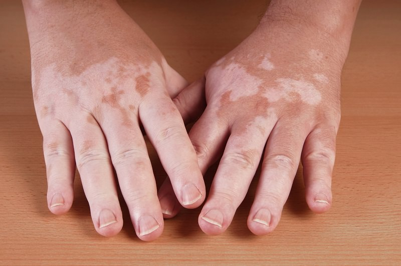 vitiligo - tratamiento vitiligo