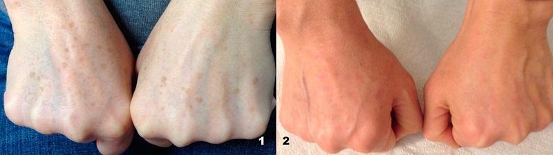antes y después tratamiento manchas solares- clínica Multilaser