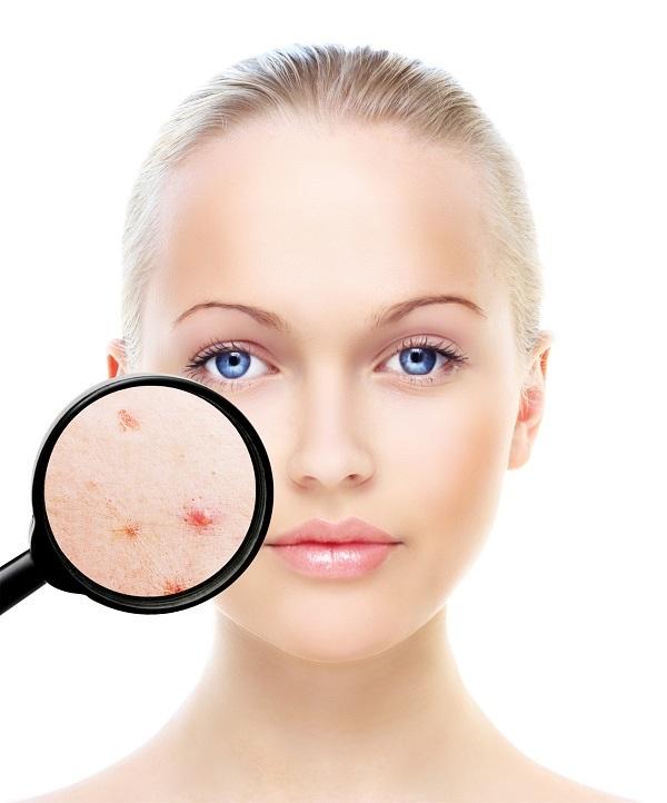 tratamiento acné clínica 3