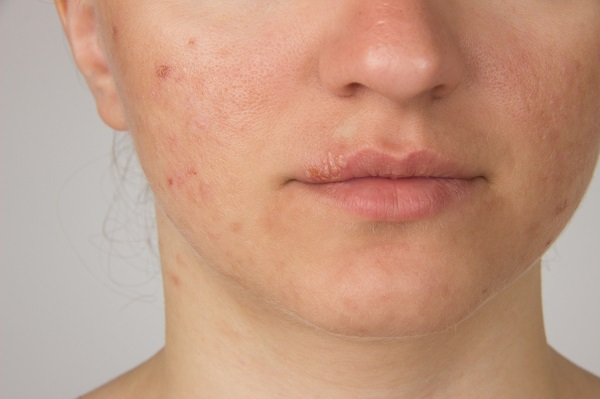 tratamiento acné clínica 2
