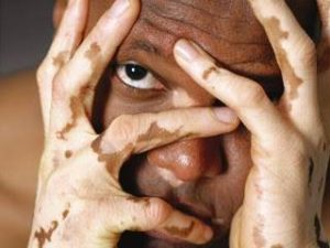 enfermedad vitiligo en niños