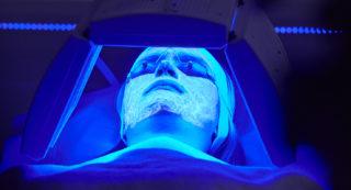 Terapia biofotónica para tratamiento de acné
