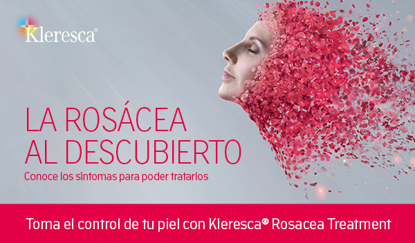 Kleresca® Rosacea Treatment
