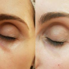 Las ojeras: sus causas y tratamientos