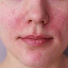 Luz y láser en el tratamiento de la cuperosis y la rosácea