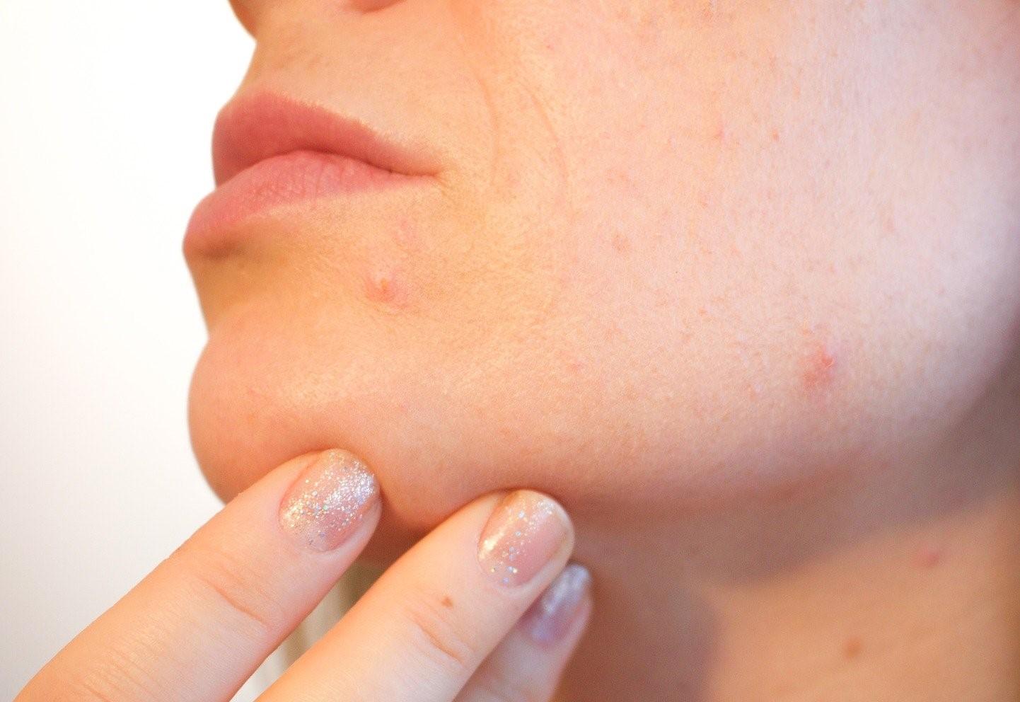 Como combatir el acné