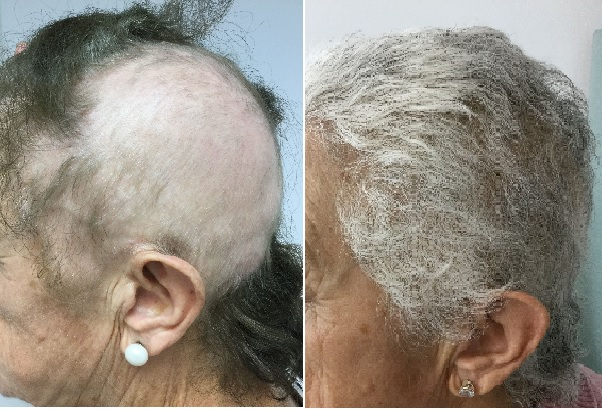 Tratamiento Alopecia areata con láser de excímeros